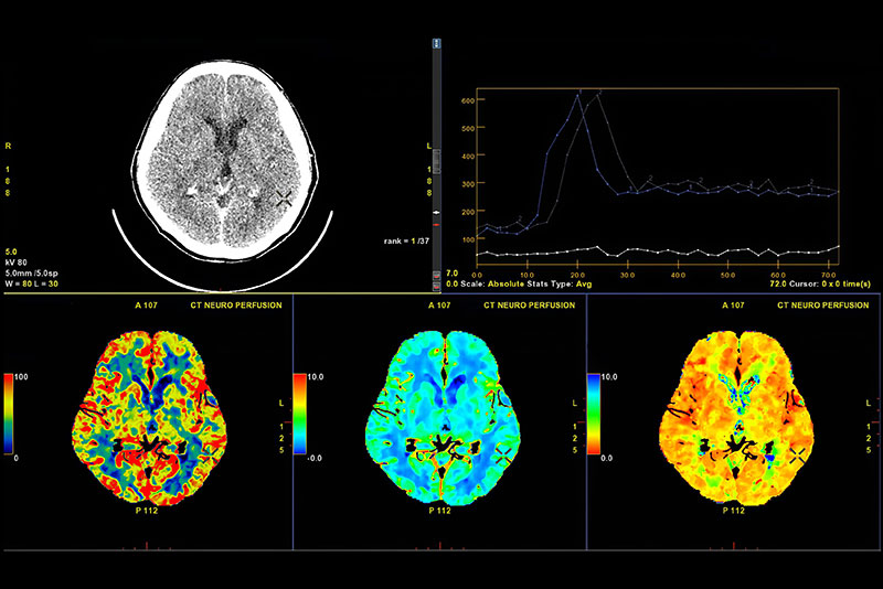 CT Brain Perfusion or CT scan image of the brain 3d rendering image analysing cerebral blood flow on the monitor.