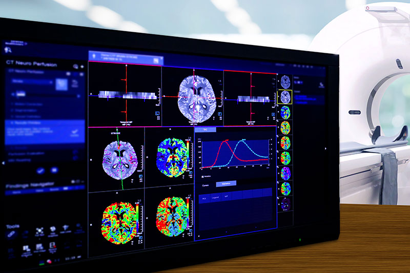 Brain Perfusion or CT scan of Blood flow in the brain 3d rendering image on the screen with CT Scan room.