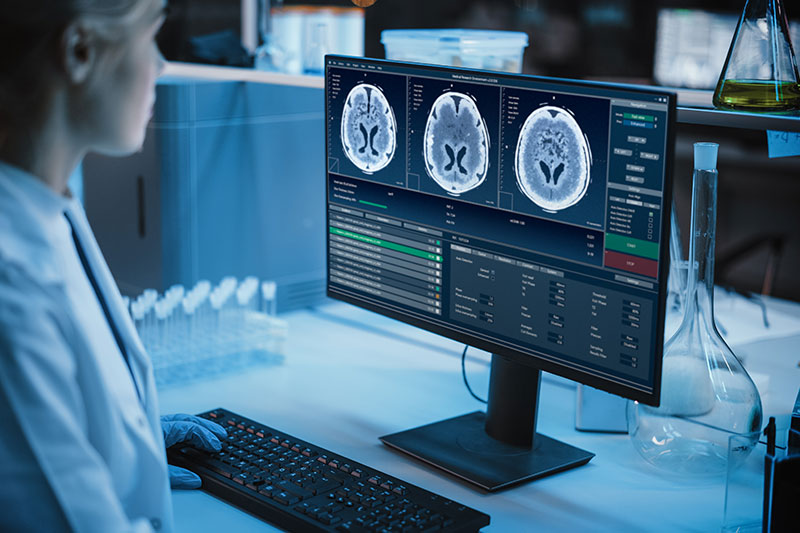 Medical Research Laboratory: Portrait of Female Scientist Working on Computer Showing MRI Brain Scans.